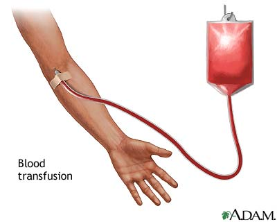 The Blood Transfusion
